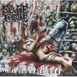 "SEVERE TORTURE ""Misanthropic Carnage"" CD"